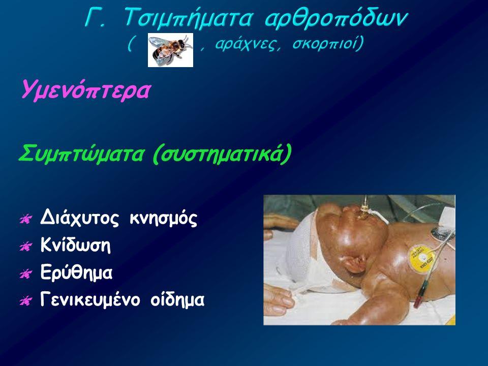 Υμενόπτερα Συμπτώματα (συστηματικά)  Διάχυτος κνησμός  Κνίδωση  Ερύθημα  Γενικευμένο οίδημα