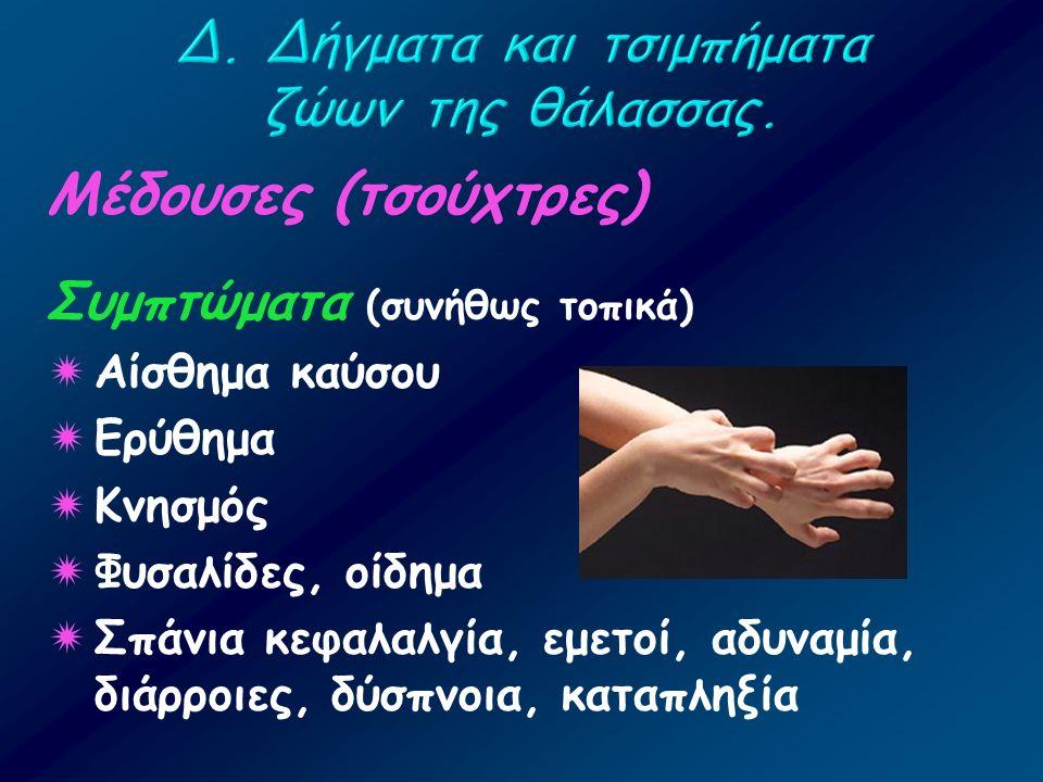 Μέδουσες (τσούχτρες) Συμπτώματα (συνήθως τοπικά)  Αίσθημα καύσου  Ερύθημα  Κνησμός  Φυσαλίδες, οίδημα  Σπάνια κεφαλαλγία, εμετοί, αδυναμία, διάρρ