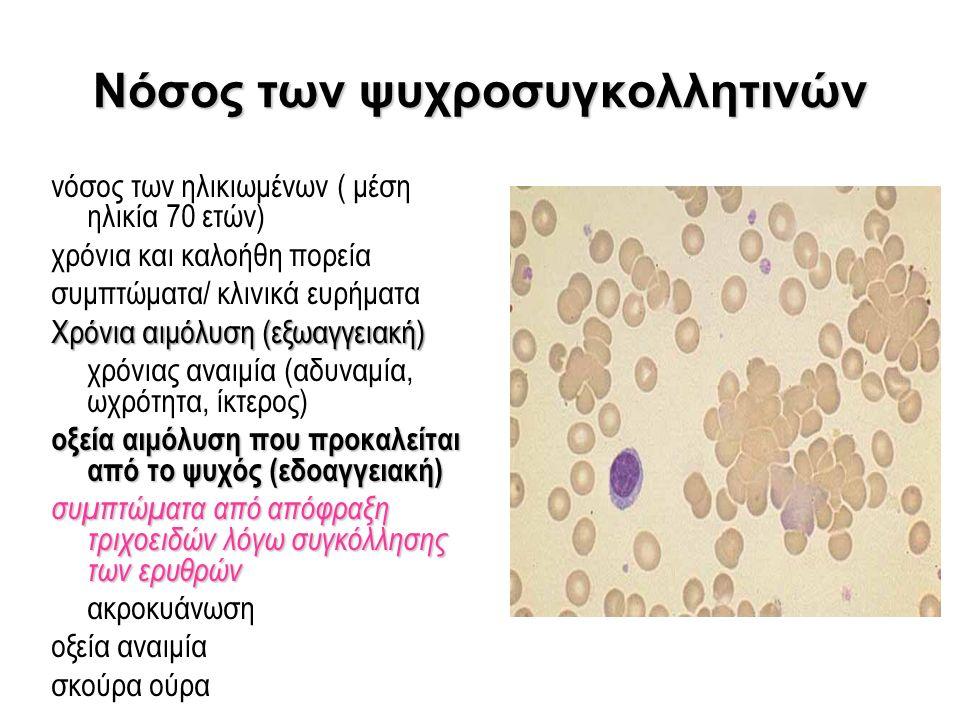 Νόσος των ψυχροσυγκολλητινών νόσος των ηλικιωμένων ( μέση ηλικία 70 ετών) χρόνια και καλοήθη πορεία συμπτώματα/ κλινικά ευρήματα Χρόνια αιμόλυση (εξωα