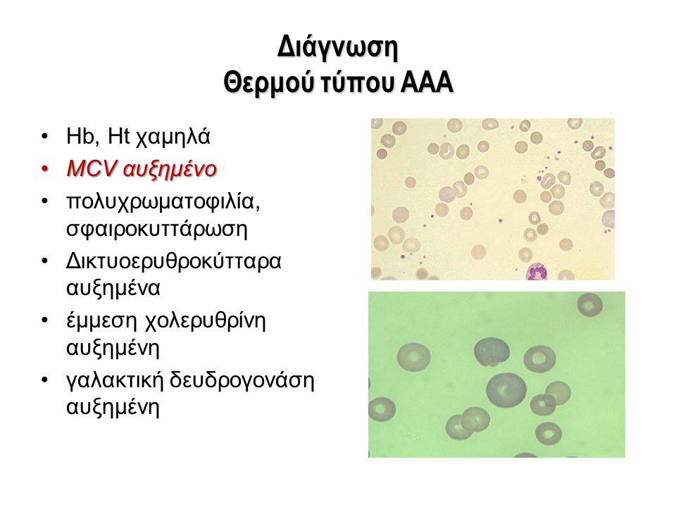 Διάγνωση Θερμού τύπου ΑΑΑ Hb, Ht χαμηλά MCV αυξημένοMCV αυξημένο πολυχρωματοφιλία, σφαιροκυττάρωση Δικτυοερυθροκύτταρα αυξημένα έμμεση χολερυθρίνη αυξ