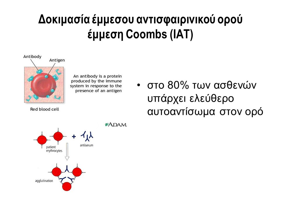 Δοκιμασία έμμεσου αντισφαιρινικού ορού έμμεση Coombs (IAT) στο 80% των ασθενών υπάρχει ελεύθερο αυτοαντίσωμα στον ορό