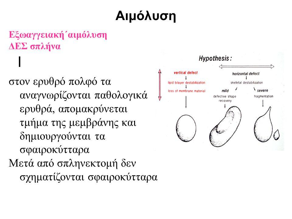 Αιμόλυση Ι Εξωαγγειακή΄αιμόλυση ΔΕΣ σπλήνα στον ερυθρό πολφό τα αναγνωρίζονται παθολογικά ερυθρά, απομακρύνεται τμήμα της μεμβράνης και δημιουργούνται
