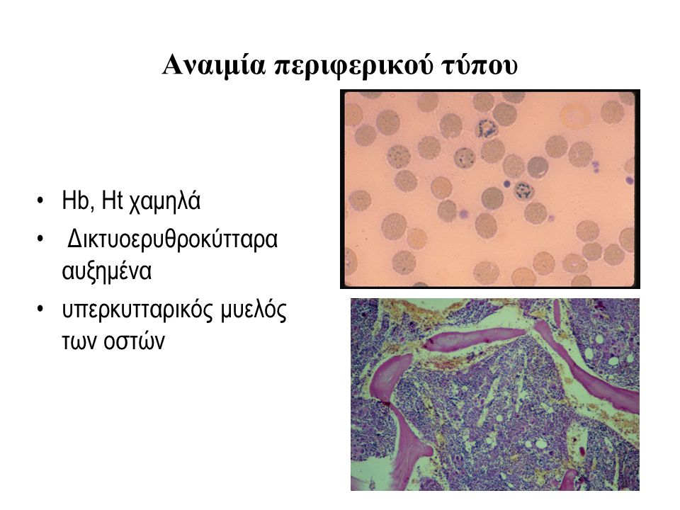 Ενδαγγειακή αιμόλυση Καταστροφή των ερυθρών εντός των αγγείων Απελευθέρωση Hb Νεφρική προσβολή Μείωση των απτοσφαιρινών Αύξηση της γαλακτικής αφυδρογονάσης LDH Εξωαγγειακή αιμόλυση Καταστροφή των ερυθρών από τα μακροφάγα κυρίως του σπλήνα Αύξηση της έμμεσης χολερυθρίνης Ικτερος σπληνομεγαλία ?.