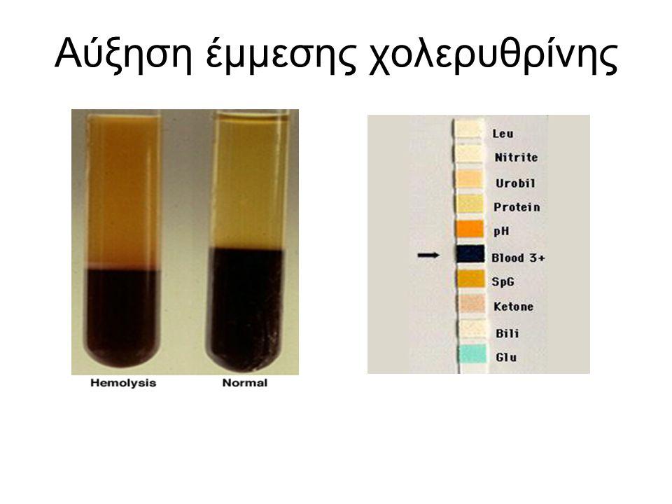 Ικτερος Οφείλεται σε εναπόθεση χολερυθρίνης στο δέρμα και τους βλεννογόνους Προσδίδει μία κιτρινωπή απόχρωση στο δέρμα, τους βλεννογόνους και τους οφθαλμούς