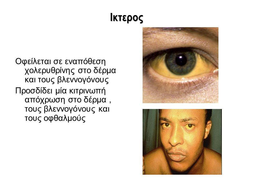 Ικτερος Οφείλεται σε εναπόθεση χολερυθρίνης στο δέρμα και τους βλεννογόνους Προσδίδει μία κιτρινωπή απόχρωση στο δέρμα, τους βλεννογόνους και τους οφθ