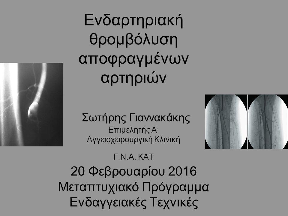 Consensus Thrombolysis in the Management of Lower Limb Peripheral Arterial Occlusion J Vasc Interv Radiol 2003; 7:S337-S349 Σύσταση 5: Αμεση έναρξη iv ηπαρίνης σε θεραπευτική δόση Σύσταση 6: Η iv έγχυση θρομβολυτικών έχει εγκαταλειφθεί Σύσταση 7: Πλήρης αγγειογραφικός έλεγχος Σύσταση 8: Εάν το test διόδου του σύρματος είναι θετικό ξεκινά η θρομβόλυση.