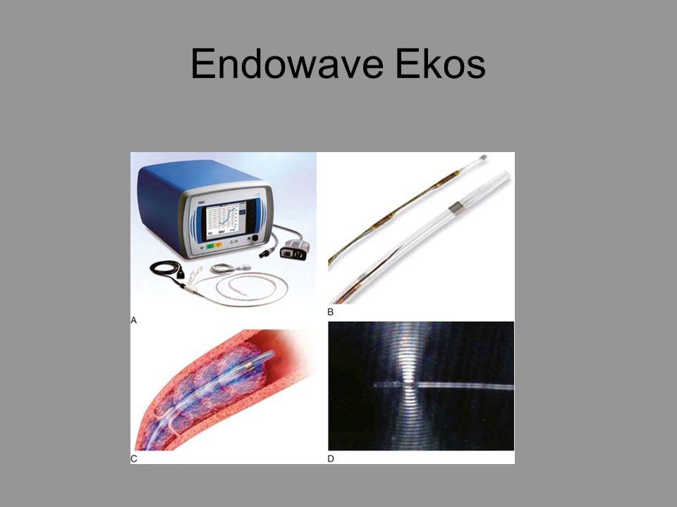 Endowave Ekos