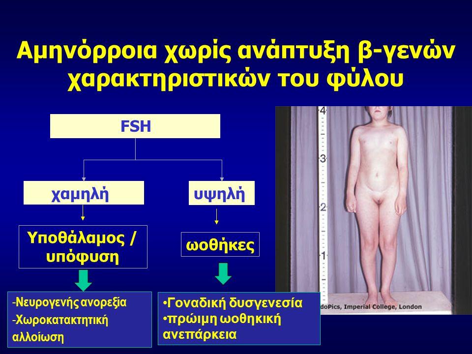 FSH χαμηλήυψηλή Υποθάλαμος / υπόφυση ωοθήκες Αμηνόρροια χωρίς ανάπτυξη β-γενών χαρακτηριστικών του φύλου Γοναδική δυσγενεσία πρώιμη ωοθηκική ανεπάρκεια - Νευρογενής ανορεξία - Χωροκατακτητική αλλοίωση
