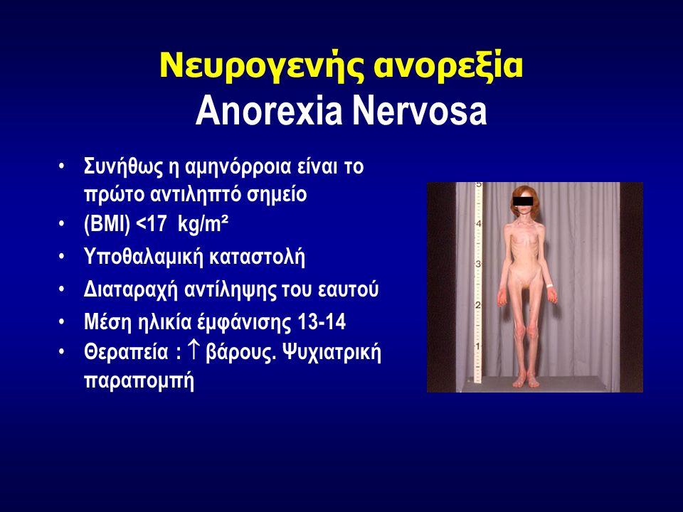 Νευρογενής ανορεξία Anorexia Nervosa Συνήθως η αμηνόρροια είναι το πρώτο αντιληπτό σημείο (BMI) <17 kg/m ² Υποθαλαμική καταστολή Διαταραχή αντίληψης του εαυτού Μέση ηλικία έμφάνισης 13-14 Θεραπεία :  βάρους.