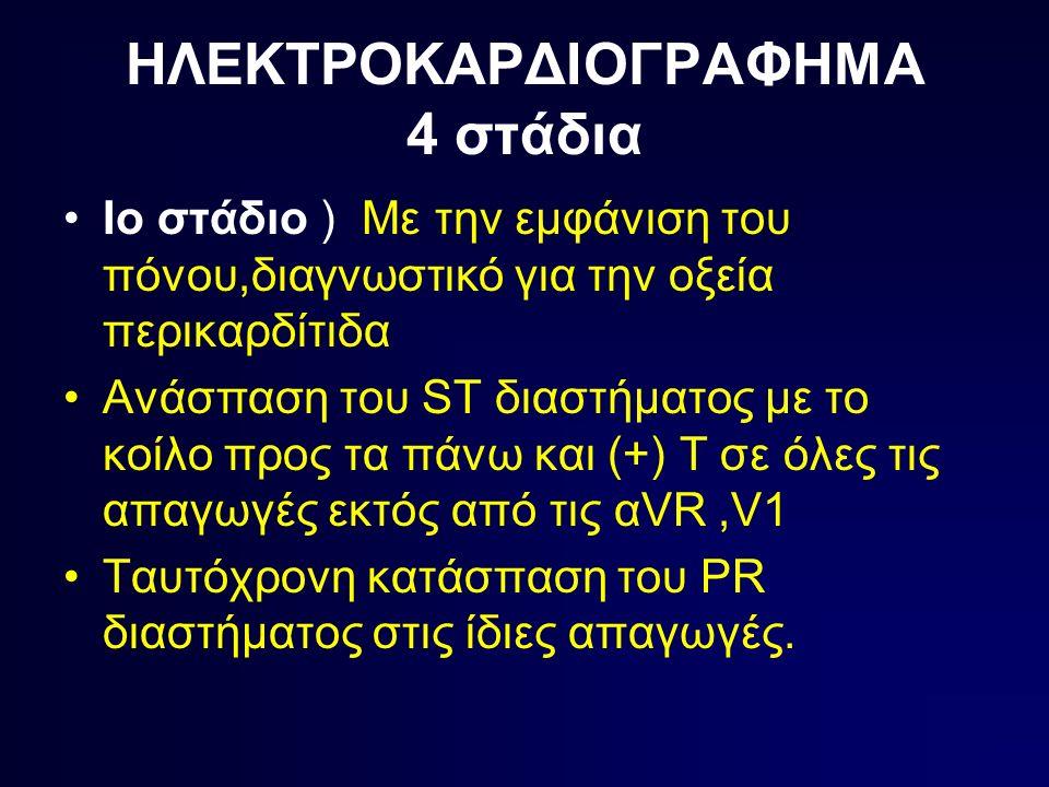ΗΛΕΚΤΡΟΚΑΡΔΙΟΓΡΑΦΗΜΑ 4 στάδια Ιο στάδιο ) Με την εμφάνιση του πόνου,διαγνωστικό για την οξεία περικαρδίτιδα Ανάσπαση του ST διαστήματος με το κοίλο προς τα πάνω και (+) Τ σε όλες τις απαγωγές εκτός από τις αVR,V1 Ταυτόχρονη κατάσπαση του PR διαστήματος στις ίδιες απαγωγές.