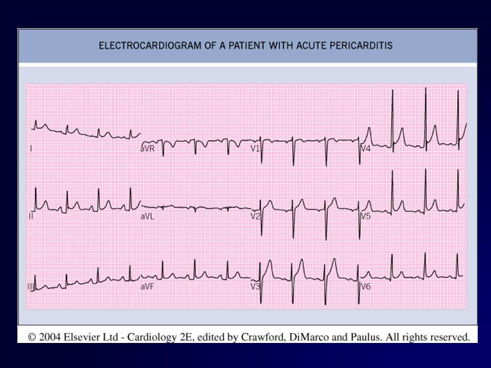 Διαφορική διάγνωση Η τριάδα αυξημένων φλεβικών πιέσεων,υπότασης και καθαρών πνευμονικών πεδίων σε Επιπωματισμό Πνευμονική εμβολή Εμφραγμα δεξιάς κοιλίας