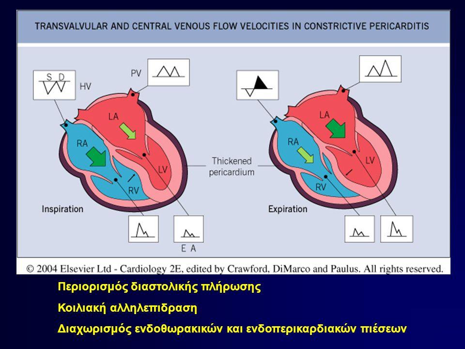 Περιορισμός διαστολικής πλήρωσης Κοιλιακή αλληλεπιδραση Διαχωρισμός ενδοθωρακικών και ενδοπερικαρδιακών πιέσεων