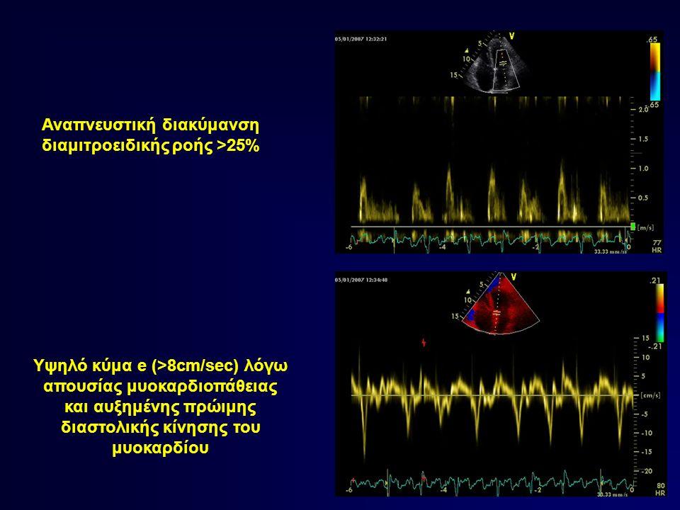 Αναπνευστική διακύμανση διαμιτροειδικής ροής >25% Υψηλό κύμα e (>8cm/sec) λόγω απουσίας μυοκαρδιοπάθειας και αυξημένης πρώιμης διαστολικής κίνησης του μυοκαρδίου