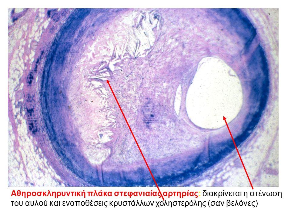 Αθηροσκληρυντική πλάκα στεφανιαίας αρτηρίας: διακρίνεται η στένωση του αυλού και εναποθέσεις κρυστάλλων χοληστερόλης (σαν βελόνες)