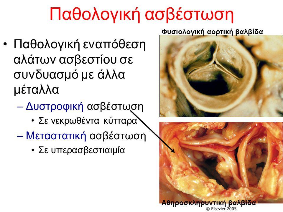 Παθολογική ασβέστωση Παθολογική εναπόθεση αλάτων ασβεστίου σε συνδυασμό με άλλα μέταλλα –Δυστροφική ασβέστωση Σε νεκρωθέντα κύτταρα –Μεταστατική ασβέσ