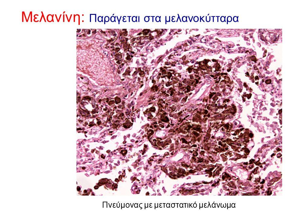 Μελανίνη: Παράγεται στα μελανοκύτταρα Πνεύμονας με μεταστατικό μελάνωμα