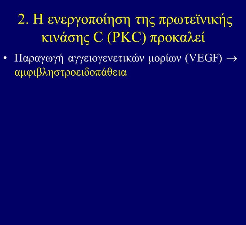 2. Η ενεργοποίηση της πρωτεϊνικής κινάσης C (PKC) προκαλεί Παραγωγή αγγειογενετικών μορίων (VEGF)  αμφιβληστροειδοπάθεια