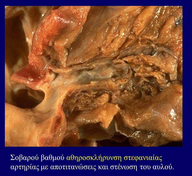 Σοβαρού βαθμού αθηροσκλήρυνση στεφανιαίας αρτηρίας με αποτιτανώσεις και στένωση του αυλού.
