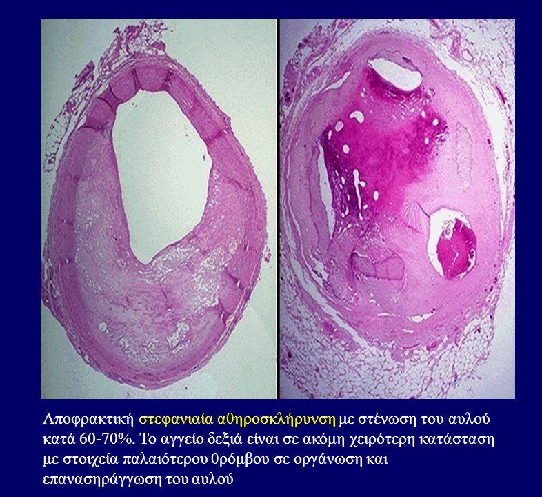 Αποφρακτική στεφανιαία αθηροσκλήρυνση με στένωση του αυλού κατά 60-70%.