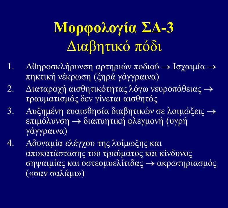 Μορφολογία ΣΔ-3 Διαβητικό πόδι 1.Αθηροσκλήρυνση αρτηριών ποδιού  Ισχαιμία  πηκτική νέκρωση (ξηρά γάγγραινα) 2.Διαταραχή αισθητικότητας λόγω νευροπάθειας  τραυματισμός δεν γίνεται αισθητός 3.Αυξημένη ευαισθησία διαβητικών σε λοιμώξεις  επιμόλυνση  διαπυητική φλεγμονή (υγρή γάγγραινα) 4.Αδυναμία ελέγχου της λοίμωξης και αποκατάστασης του τραύματος και κίνδυνος σηψαιμίας και οστεομυελίτιδας  ακρωτηριασμός («σαν σαλάμι»)