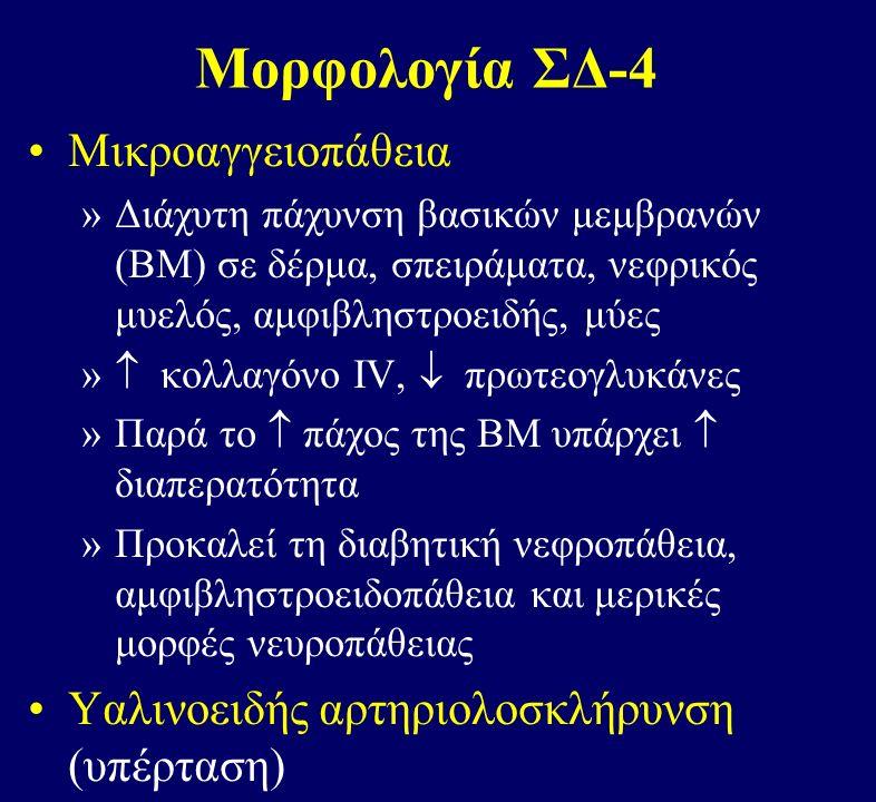 Μορφολογία ΣΔ-4 Μικροαγγειοπάθεια »Διάχυτη πάχυνση βασικών μεμβρανών (ΒΜ) σε δέρμα, σπειράματα, νεφρικός μυελός, αμφιβληστροειδής, μύες »  κολλαγόνο IV,  πρωτεογλυκάνες »Παρά το  πάχος της ΒΜ υπάρχει  διαπερατότητα »Προκαλεί τη διαβητική νεφροπάθεια, αμφιβληστροειδοπάθεια και μερικές μορφές νευροπάθειας Υαλινοειδής αρτηριολοσκλήρυνση (υπέρταση)