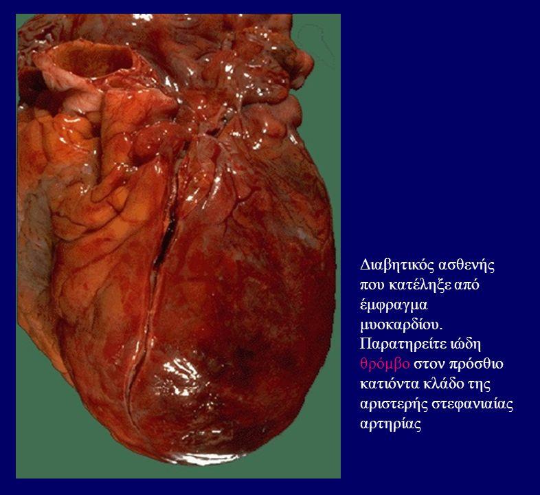 Αντίσταση ιστών στην ινσουλίνη σε ΣΔ τύπου 2 (α) Μείζων παράγοντας παθογένειας ΣΔ τύπου 2 Παρατηρείται και σε παχυσαρκία, κύηση Ελάττωση υποδοχέων ινσουλίνης ή post- receptor defects ( π.χ.