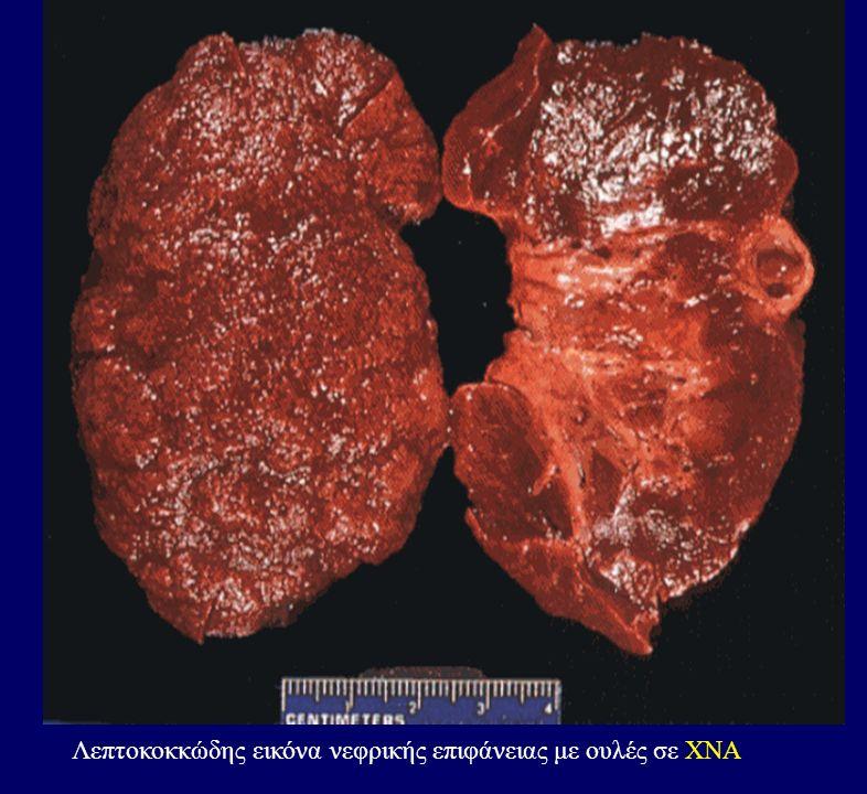 Λεπτοκοκκώδης εικόνα νεφρικής επιφάνειας με ουλές σε ΧΝΑ