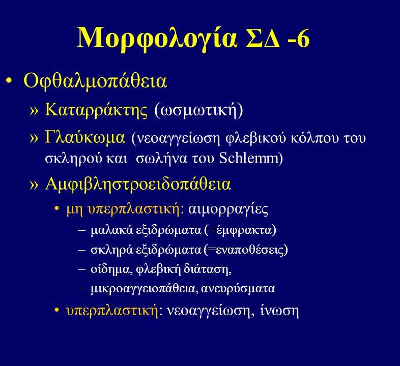 Μορφολογία ΣΔ -6 Οφθαλμοπάθεια »Καταρράκτης (ωσμωτική) »Γλαύκωμα (νεοαγγείωση φλεβικού κόλπου του σκληρού και σωλήνα του Schlemm) »Αμφιβληστροειδοπάθεια μη υπερπλαστική: αιμορραγίες –μαλακά εξιδρώματα (=έμφρακτα) –σκληρά εξιδρώματα (=εναποθέσεις) –οίδημα, φλεβική διάταση, –μικροαγγειοπάθεια, ανευρύσματα υπερπλαστική: νεοαγγείωση, ίνωση