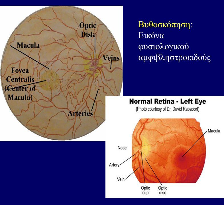 Βυθοσκόπηση: Εικόνα φυσιολογικού αμφιβληστροειδούς