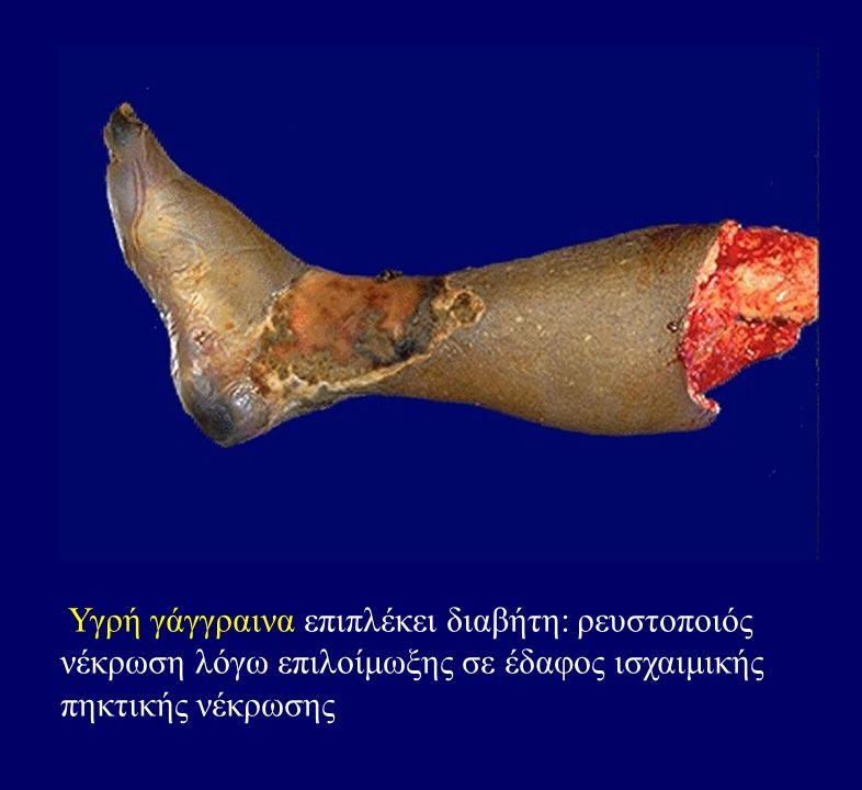 Υγρή γάγγραινα επιπλέκει διαβήτη: ρευστοποιός νέκρωση λόγω επιλοίμωξης σε έδαφος ισχαιμικής πηκτικής νέκρωσης