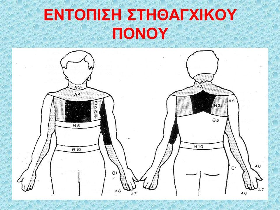 ΔΙΑΧΩΡΙΣΤΙΚΟ ΑΝΕΥΡΥΣΜΑ ΑΟΡΤΗΣ (1)  Διάταση χιτώνων αορτικού τοιχώματος λόγω καταστροφής ελαστικών ινών του μέσου χιτώνα  Αιτιολογία: υπέρταση, συγγενείς ανωμαλίες, στένωση αορτής, κυφοσκολίωση, κύηση  Κλινική εικόνα ανευρύσματος: πόνος που συχνά συνδυάζεται με βράγχος φωνής, βήχα, αιμόπτυση, δυσφαγία  Συμπτώματα από απόφραξη αρτηριών: Καρωτίδα: κώμα, τύφλωση, Α.Ε.Ε.