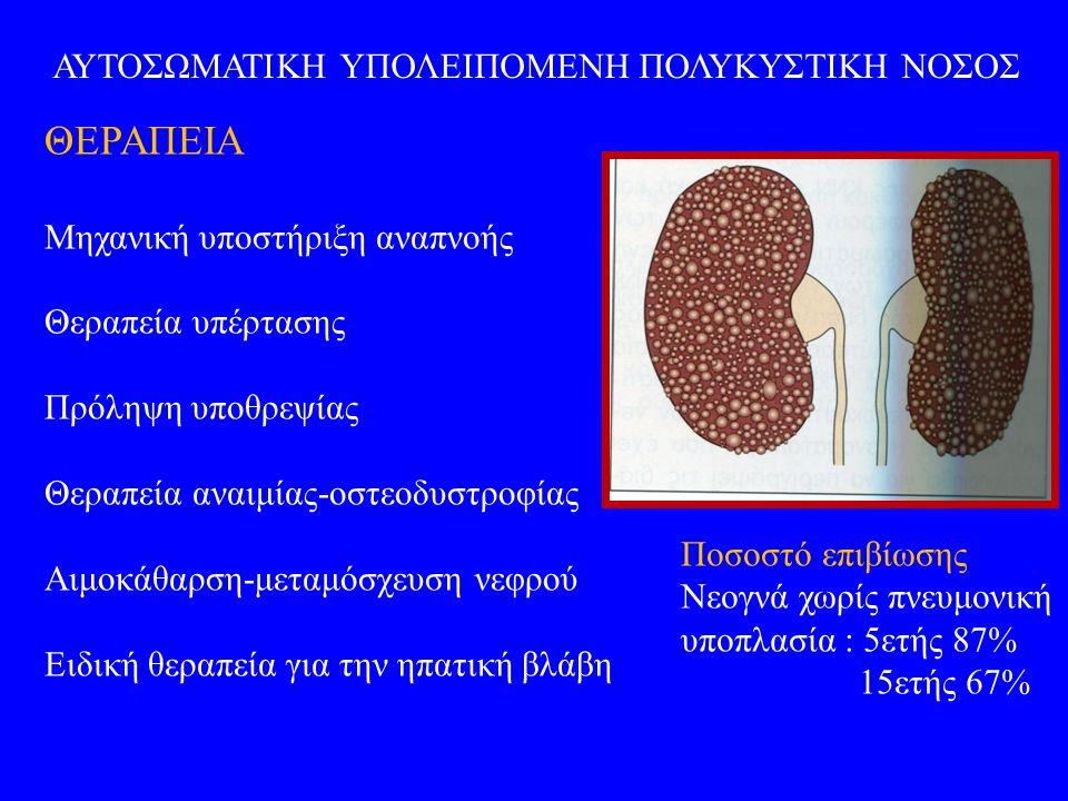 ΑΥΤΟΣΩΜΑΤΙΚΗ ΥΠΟΛΕΙΠΟΜΕΝΗ ΠΟΛΥΚΥΣΤΙΚΗ ΝΟΣΟΣ ΘΕΡΑΠΕΙΑ Μηχανική υποστήριξη αναπνοής Θεραπεία υπέρτασης Πρόληψη υποθρεψίας Θεραπεία αναιμίας-οστεοδυστροφίας Αιμοκάθαρση-μεταμόσχευση νεφρού Ειδική θεραπεία για την ηπατική βλάβη Ποσοστό επιβίωσης Νεογνά χωρίς πνευμονική υποπλασία : 5ετής 87% 15ετής 67%