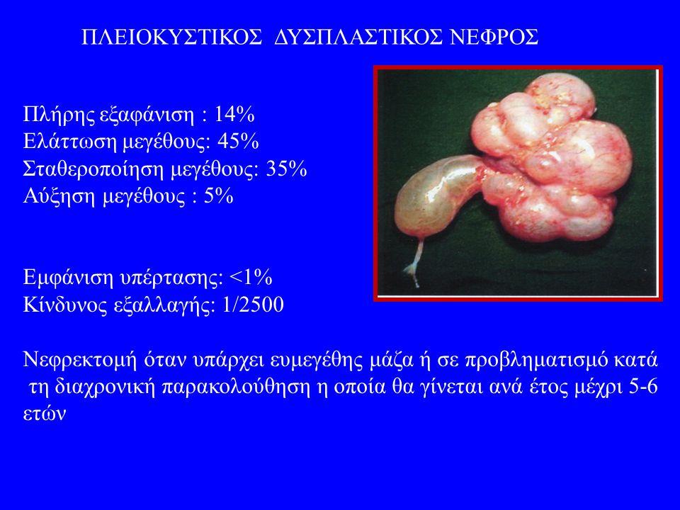ΠΟΛΥΧΩΡΗ ΝΕΦΡΙΚΗ ΚΥΣΤΗ Κυστικό νέφρωμα-λεμφαγγείωμα νεφρού Συχνότητα: 1/200000-250000, 30-50% παιδική ηλικία Στο νεφρικό παρέγχυμα αλλά μπορεί να επεκτείνεται στην πύελο ΔΙΑΓΝΩΣΗ: ψηλαφητή κοιλιακή μάζα υπερηχογράφημα αξονική τομογραφία βιοψία (διαχωρισμός από το κυστικό wilms) ΘΕΡΑΠΕΙΑ : Nεφρεκτομή- Ημινεφρεκτομή (σε μονήρη νεφρό)