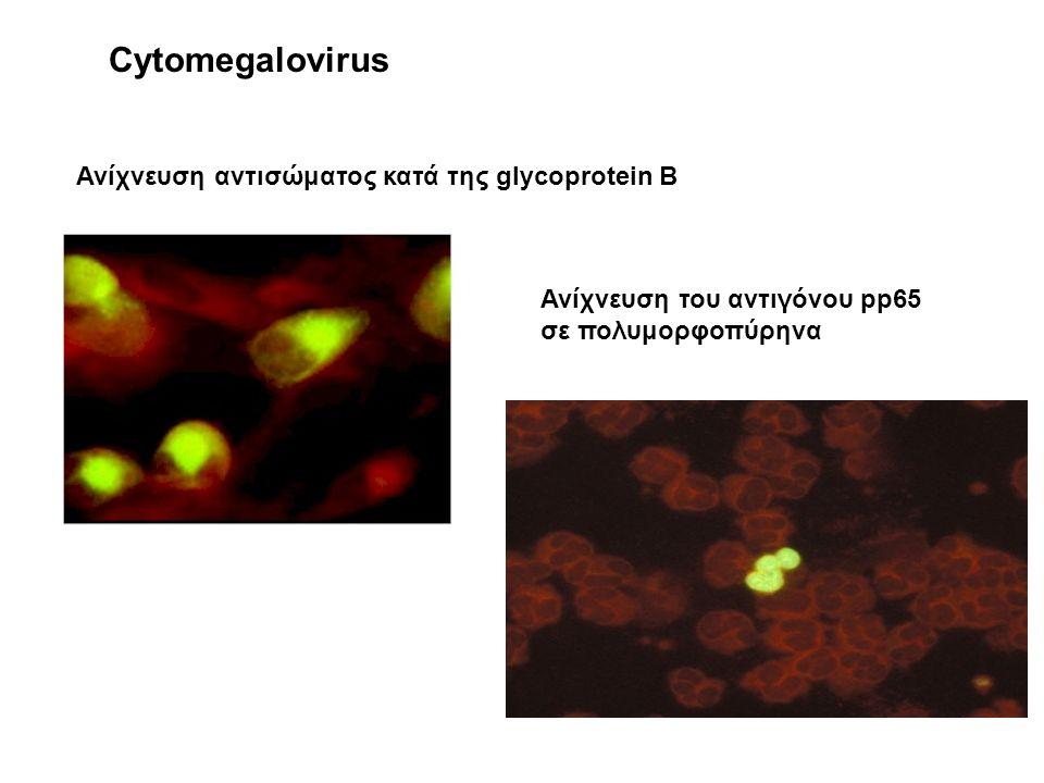 Ανίχνευση αντισώματος κατά της glycoprotein B Ανίχνευση του αντιγόνου pp65 σε πολυμορφοπύρηνα Cytomegalovirus