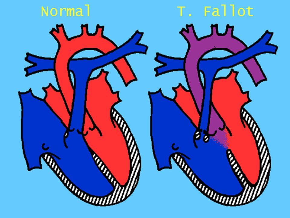 Μετάθεση μεγάλων αγγείων Πρόκειται για έκφυση της αορτής από τη δεξιά κοιλία και έκφυση της πνευμονικής αρτηρίας από την αριστερή κοιλία.