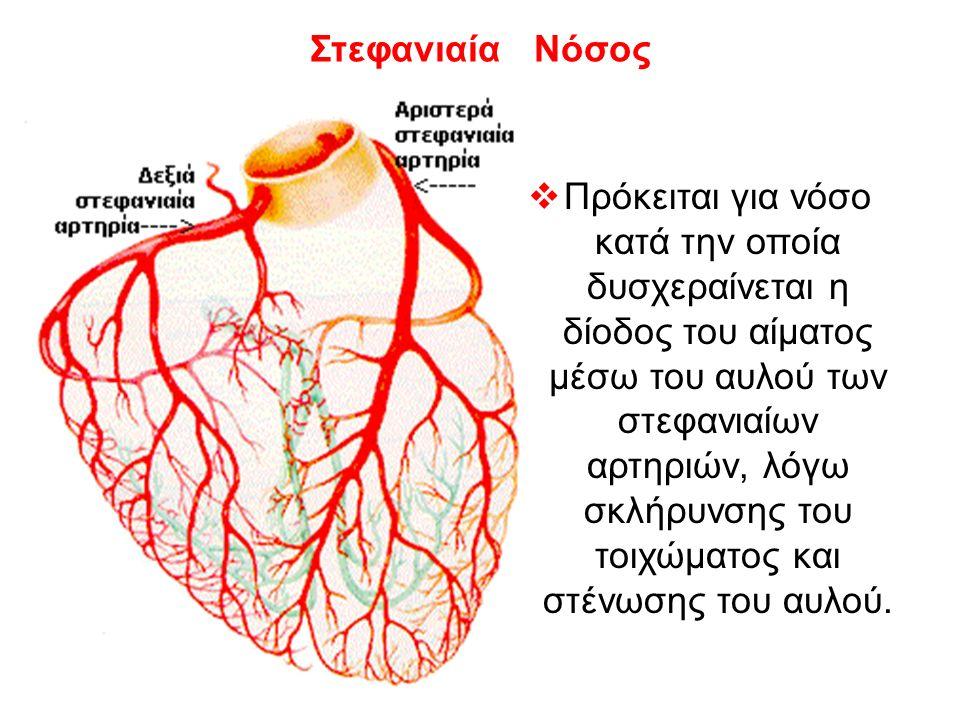 Στεφανιαία Νόσος  Πρόκειται για νόσο κατά την οποία δυσχεραίνεται η δίοδος του αίματος μέσω του αυλού των στεφανιαίων αρτηριών, λόγω σκλήρυνσης του τοιχώματος και στένωσης του αυλού.