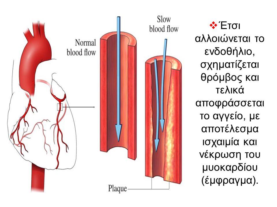  Έτσι αλλοιώνεται το ενδοθήλιο, σχηματίζεται θρόμβος και τελικά αποφράσσεται το αγγείο, με αποτέλεσμα ισχαιμία και νέκρωση του μυοκαρδίου (έμφραγμα).
