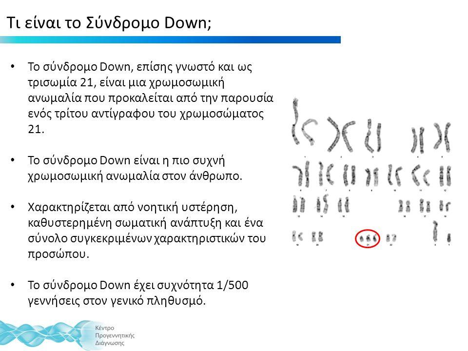 Τι είναι το Σύνδρομο Down; Το σύνδρομο Down, επίσης γνωστό και ως τρισωμία 21, είναι μια χρωμοσωμική ανωμαλία που προκαλείται από την παρουσία ενός τρίτου αντίγραφου του χρωμοσώματος 21.