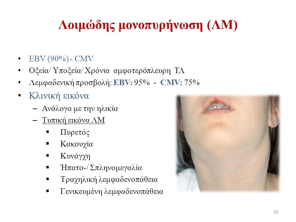Λοιμώδης μονοπυρήνωση (ΛΜ) EBV (90%) - CMV Οξεία/ Υποξεία/ Χρόνια αμφοτερόπλευρη ΤΛ Λεμφαδενική προσβολή: EBV: 95% - CMV: 75% Κλινική εικόνα – Ανάλογα με την ηλικία – Τυπική εικόνα ΛΜ  Πυρετός  Κακουχία  Κυνάγχη  Ήπατο-/ Σπληνομεγαλία  Τραχηλική λεμφαδενοπάθεια  Γενικευμένη λεμφαδενοπάθεια 20