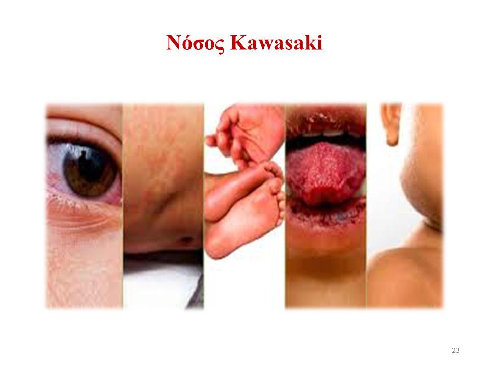 23 Νόσος Κawasaki