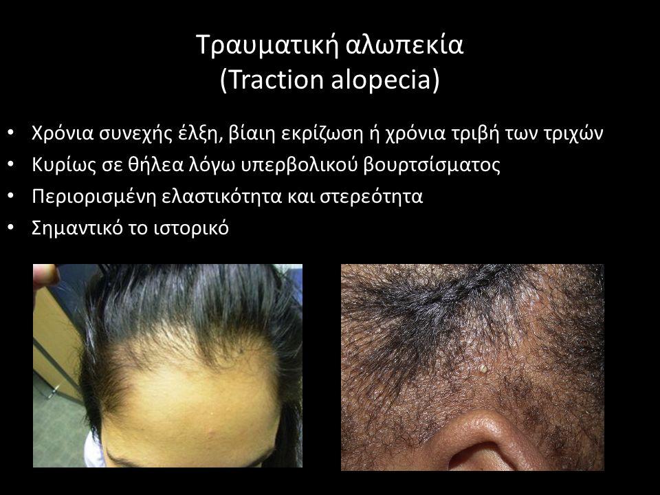Τραυματική αλωπεκία (Traction alopecia) Χρόνια συνεχής έλξη, βίαιη εκρίζωση ή χρόνια τριβή των τριχών Κυρίως σε θήλεα λόγω υπερβολικού βουρτσίσματος Περιορισμένη ελαστικότητα και στερεότητα Σημαντικό το ιστορικό