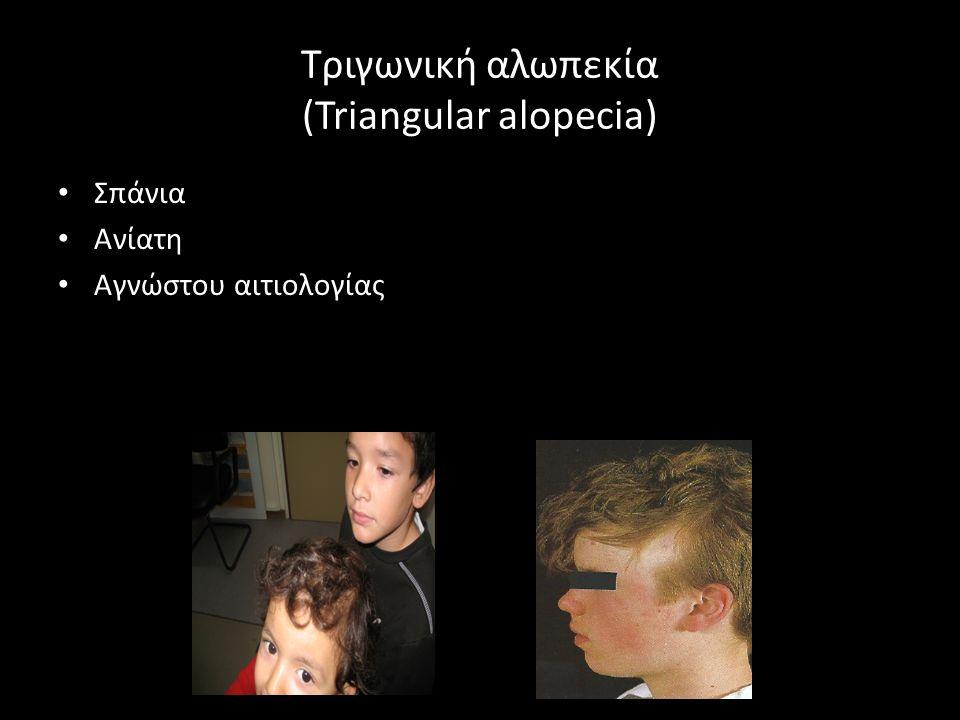 Τριγωνική αλωπεκία (Triangular alopecia) Σπάνια Ανίατη Αγνώστου αιτιολογίας