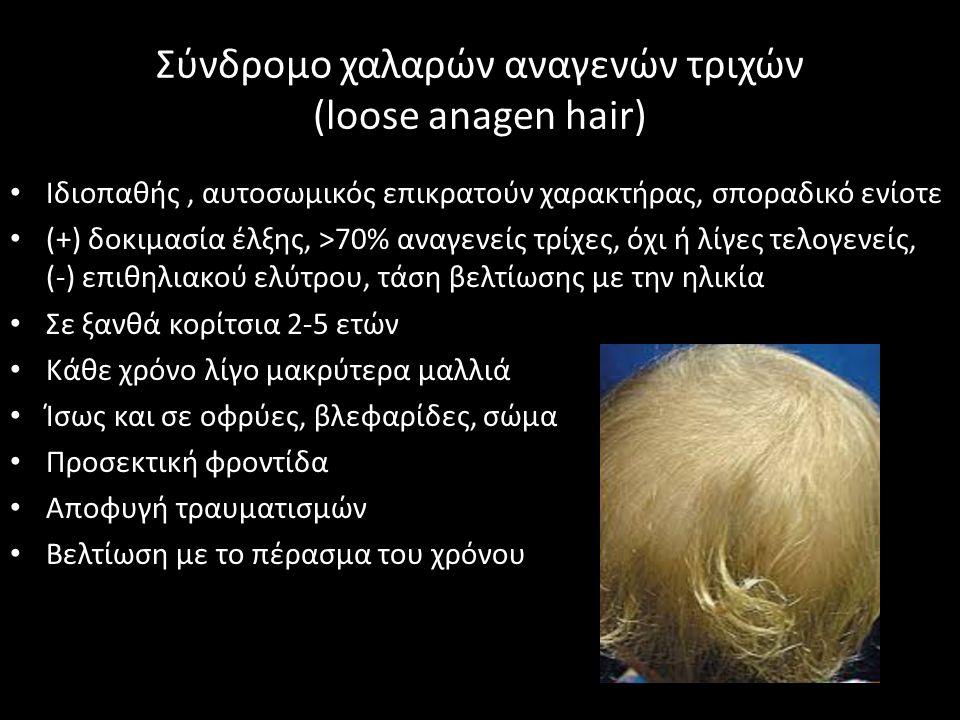Σύνδρομο χαλαρών αναγενών τριχών (loose anagen hair) Ιδιοπαθής, αυτοσωμικός επικρατούν χαρακτήρας, σποραδικό ενίοτε (+) δοκιμασία έλξης, >70% αναγενείς τρίχες, όχι ή λίγες τελογενείς, (-) επιθηλιακού ελύτρου, τάση βελτίωσης με την ηλικία Σε ξανθά κορίτσια 2-5 ετών Κάθε χρόνο λίγο μακρύτερα μαλλιά Ίσως και σε οφρύες, βλεφαρίδες, σώμα Προσεκτική φροντίδα Αποφυγή τραυματισμών Βελτίωση με το πέρασμα του χρόνου