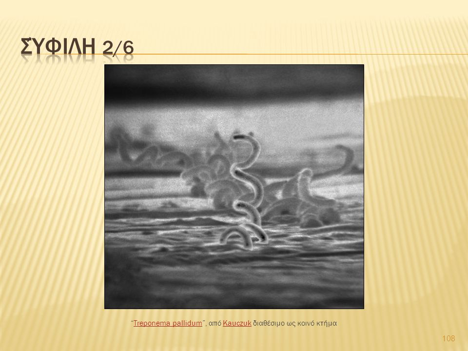 "108 ""Treponema pallidum"", από Kauczuk διαθέσιμο ως κοινό κτήμαTreponema pallidumKauczuk"