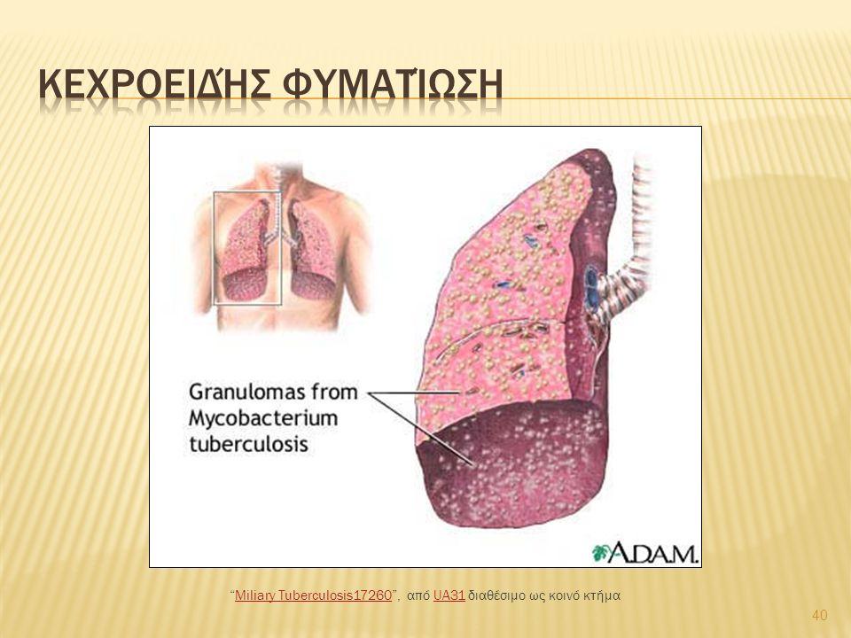 "40 ""Miliary Tuberculosis17260"", από UA31 διαθέσιμο ως κοινό κτήμαMiliary Tuberculosis17260UA31"