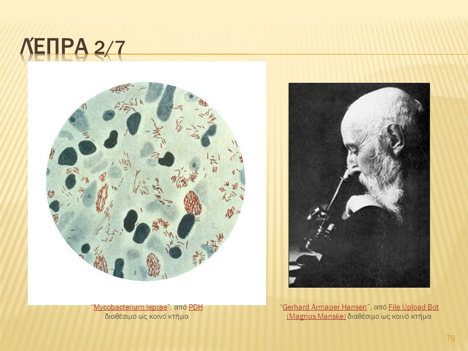 "79 ""Mycobacterium leprae"", από PDH διαθέσιμο ως κοινό κτήμαMycobacterium lepraePDH ""Gerhard Armauer Hansen"", από File Upload Bot (Magnus Manske) διαθέ"
