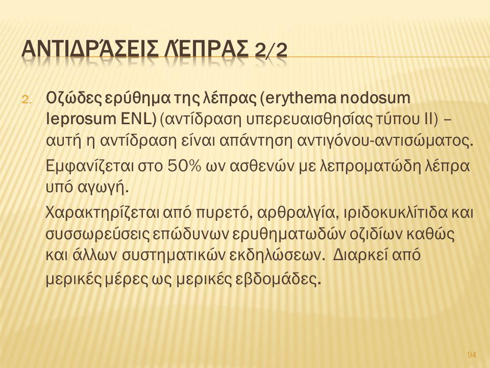 2. Οζώδες ερύθημα της λέπρας (erythema nodosum leprosum ENL) (αντίδραση υπερευαισθησίας τύπου ΙΙ) – αυτή η αντίδραση είναι απάντηση αντιγόνου-αντισώμα