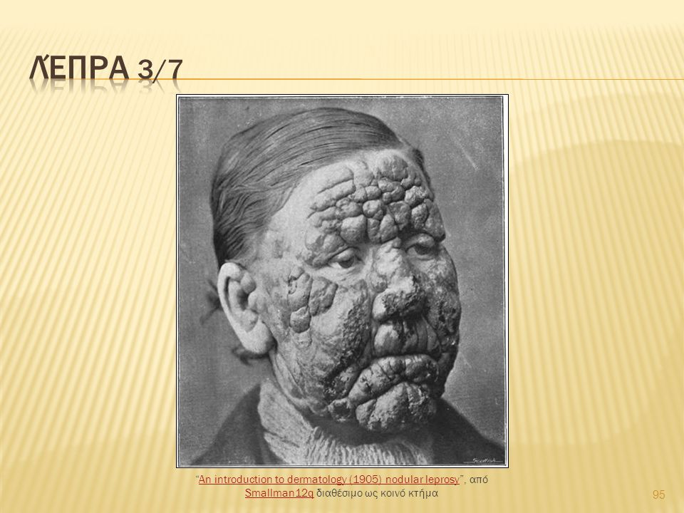 95 An introduction to dermatology (1905) nodular leprosy , από Smallman12q διαθέσιμο ως κοινό κτήμαAn introduction to dermatology (1905) nodular leprosy Smallman12q