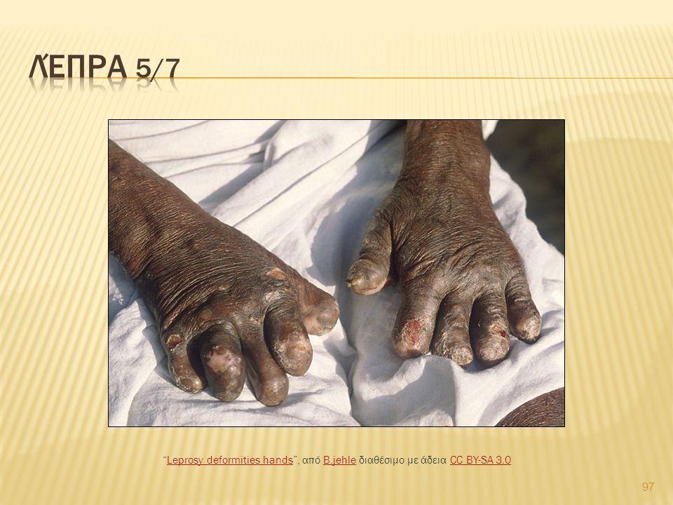 "97 ""Leprosy deformities hands"", από B.jehle διαθέσιμο με άδεια CC BY-SA 3.0Leprosy deformities handsB.jehleCC BY-SA 3.0"