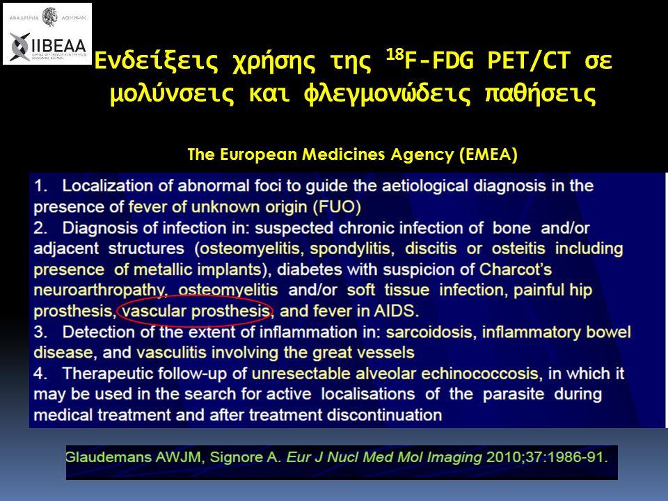 Ενδείξεις χρήσης της 18 F-FDG PET/CT σε μολύνσεις και φλεγμονώδεις παθήσεις The European Medicines Agency (EMEA)